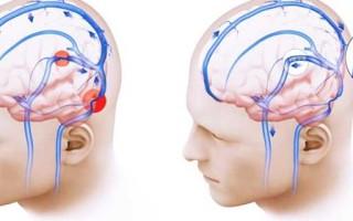 Синдром внутричерепной гипертензии (ВЧГ, ВЧД) у взрослых и детей, кодировка в МКБ