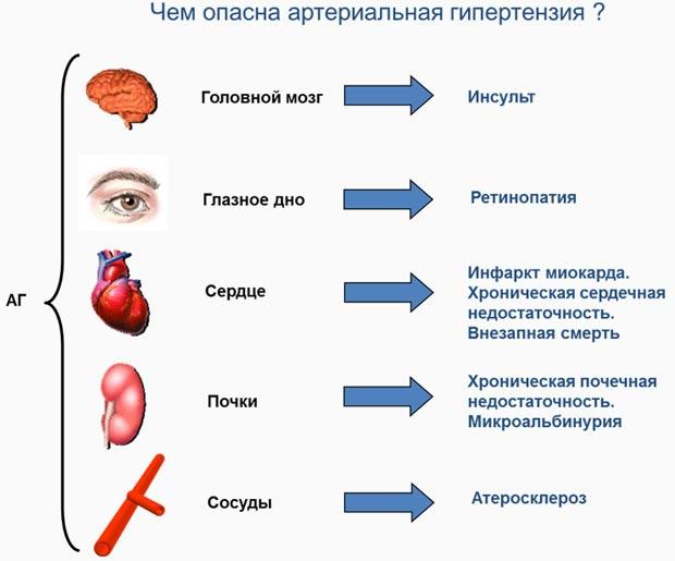 Чем опасна артериальная гипертензия?