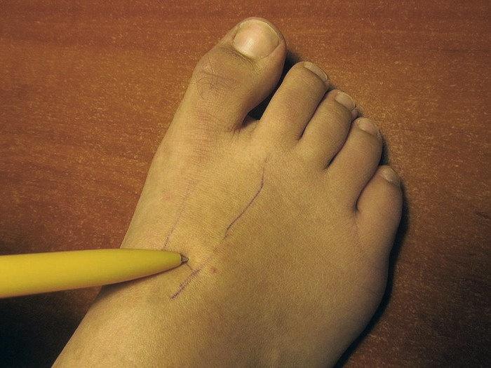 точка на ноге