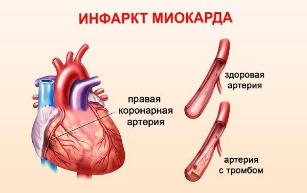 об инфаркте