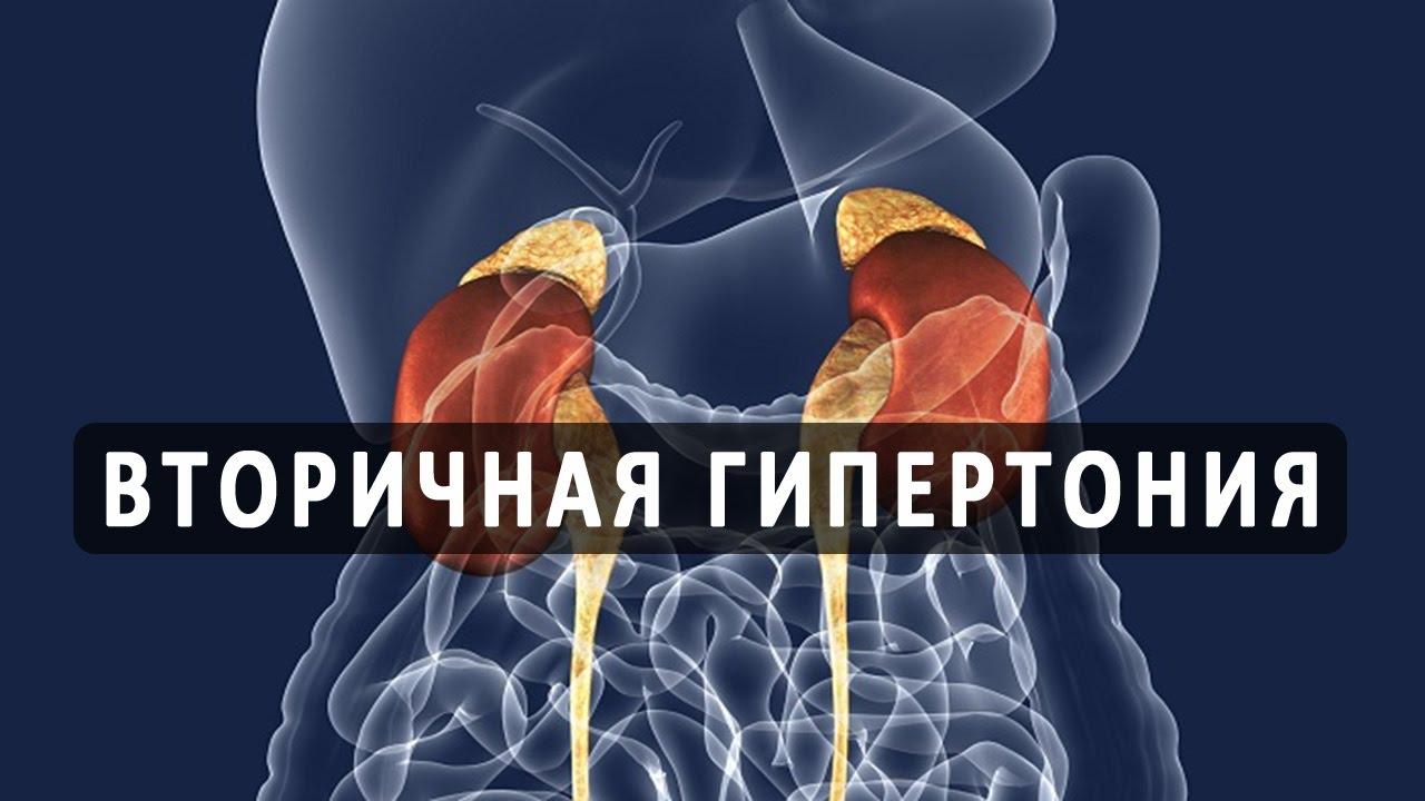 вторичная гипертония