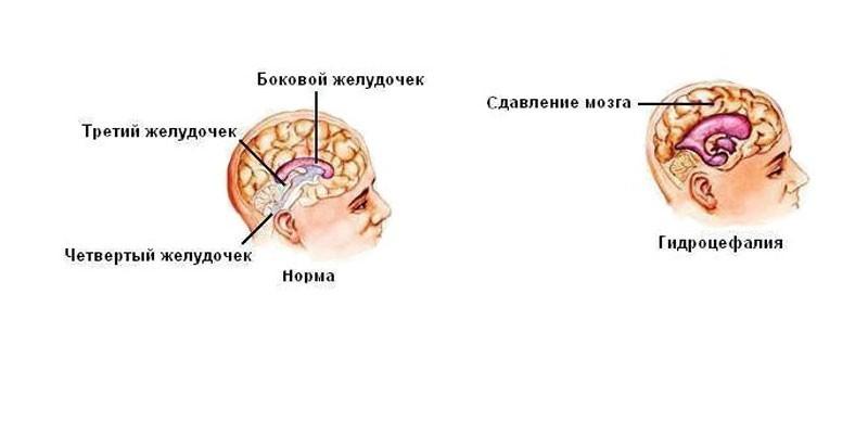 гипертензивная энцефалопатия