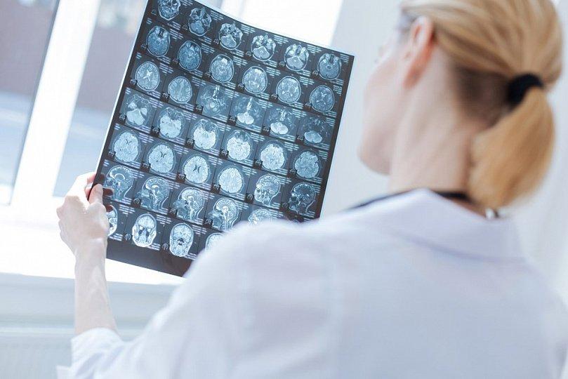врач изучает снимки мозга