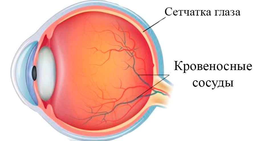 сосуды глаз при повышенном АД
