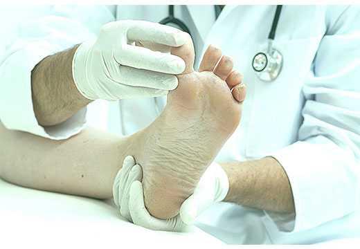 Первые проявления перемежающейся хромоты, способы ее диагностики и лечения