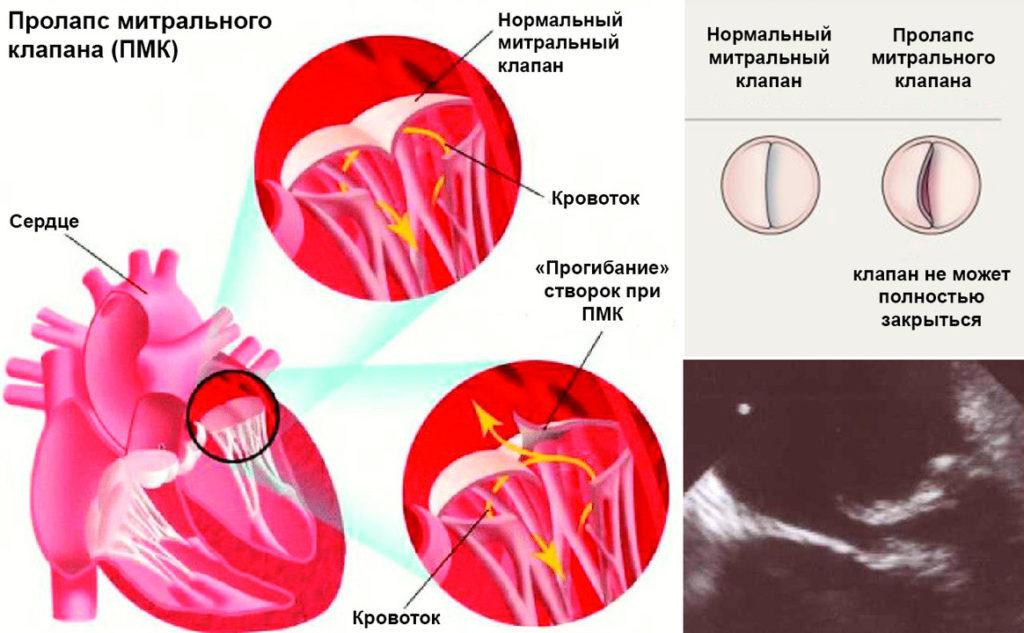 Опасности пролапса митрального клапана, методы диагностики и лечения